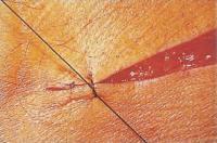 4. Узел располагают на одной стороне раны чтобы вызвать меньше раздражения