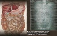а этой схеме отмечены органы, которые можно визуализировать посредством КТ-сканирования