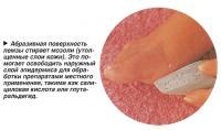 Абразивная поверхность пемзы стирает мозоли (утолщенные слои кожи)