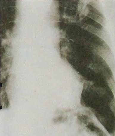 Абсцесс легкого виден на рентгенограмме как гроздеобразная масса в левом легком