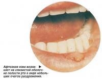 Афтозная язва возникает на слизистой оболочке полости рта