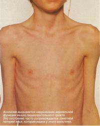 Ахалазия вызывается нарушением нормальной функции мышц пищеварительного тракта