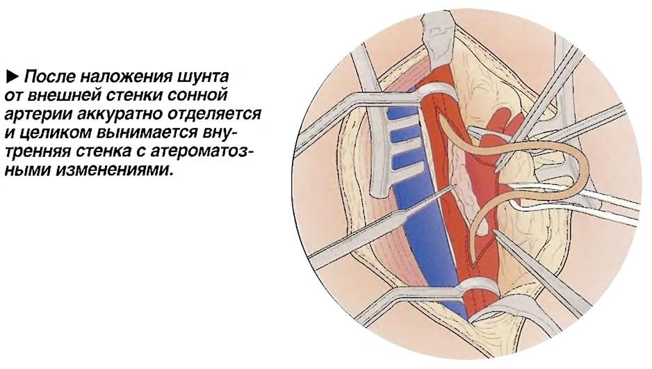 Аккуратно отделяется и целиком вынимается внутренняя стенка с атероматозными изменениями