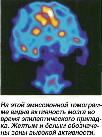Активность мозга во время эпилептического припадка