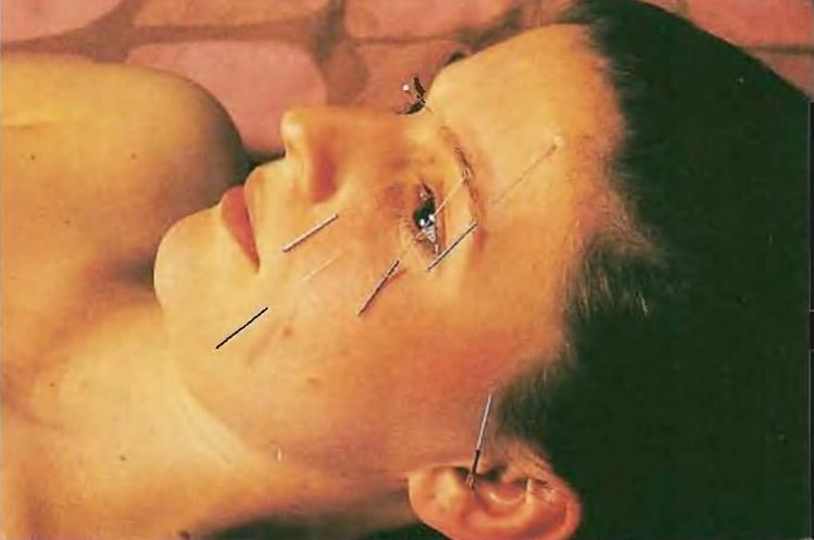 Акупунктура стимулирует нервные окончания с помощью игл, введенных в кожу