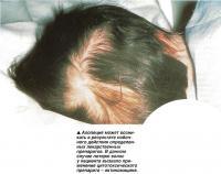 Алопеция может возникать в результате побочного действия определенных лекарственных препаратов