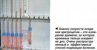 Анализ скорости оседания эритроцитов