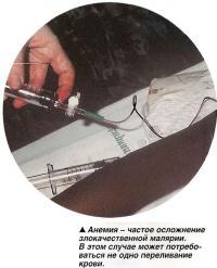 Анемия - частое осложнение злокачественной малярии