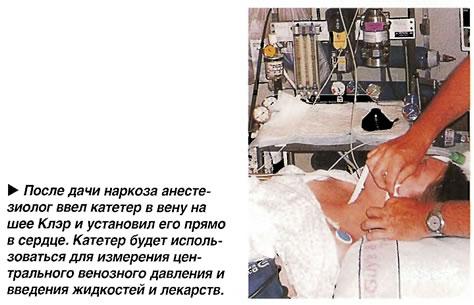 Анестезиолог ввел катетер в вену на шее Клэр и установил его прямо в сердце
