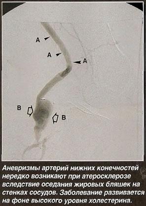 Аневризма артерий нижних конечностей