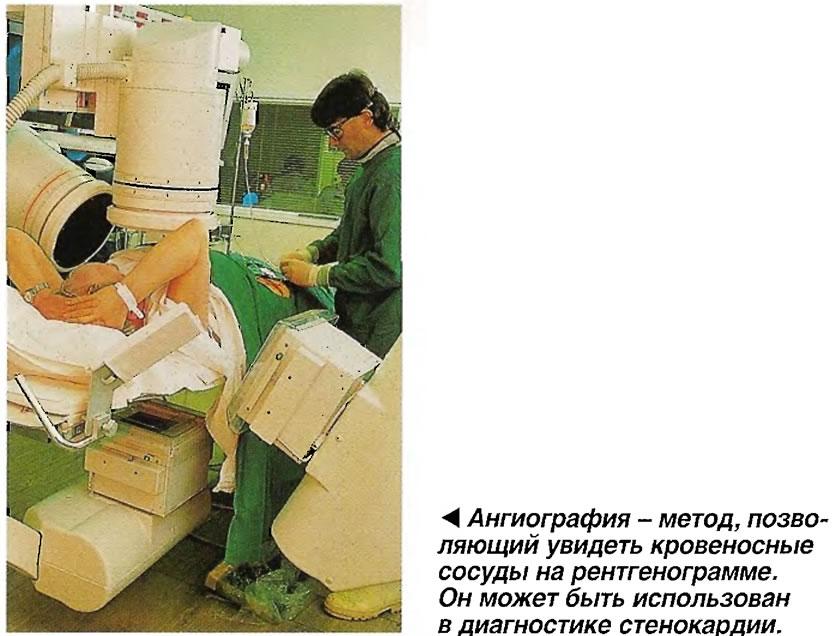 Ангиография - метод, позволяющий увидеть кровеносные сосуды