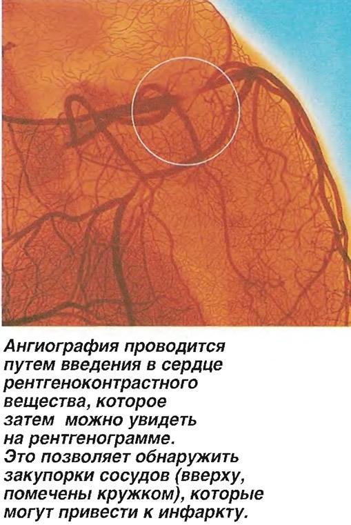 Ангиография проводится путем введения в сердце рентгеноконтрастного вещества