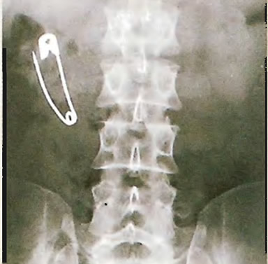 Английская булавка прошла в нижние отделы желудочно-кишечного тракта