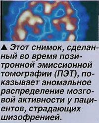 Аномальное распределение мозговой активности у пациентов, страдающих шизофренией