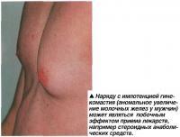 Аномальное увеличение молочных желез у мужчин