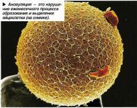 Ановуляция - это нарушение ежемесячного процесса образования и выделения яйцеклетки