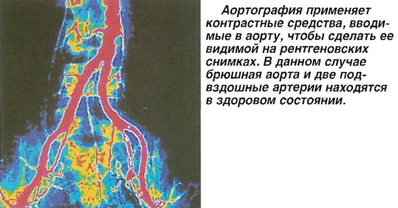 Аортография применяет контрастные средства