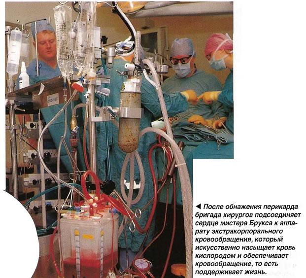 Аппарат экстракорпорального кровообращения