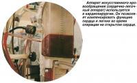 Аппарат искусственного кровообращения используется в кардиохирургии