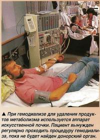 Аппарат искусственной почки