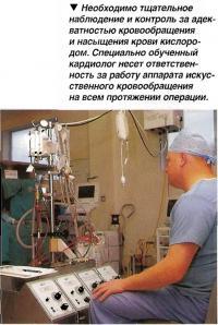 Аппарата искусственного кровообращения