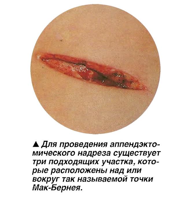 Аппендэктомический надрез