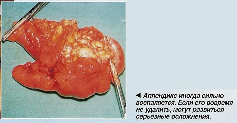 Аппендикс иногда сильно воспаляется