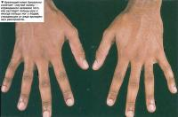 Арахнодактилия буквально означает «паучий палец»