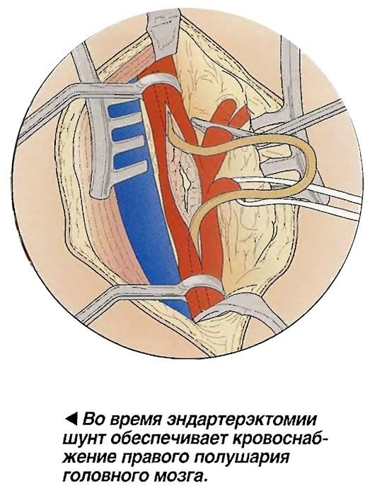 Артерия рассекается на протяжении всего обтурированного участка