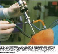 Артроскоп является разновидностью эндоскопа