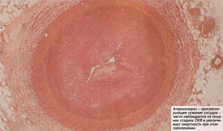 Атеросклероз - прогрессирующее сужение сосудов