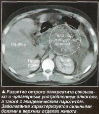 азвитие острого панкреатита связывают с чрезмерным употреблением алкоголя