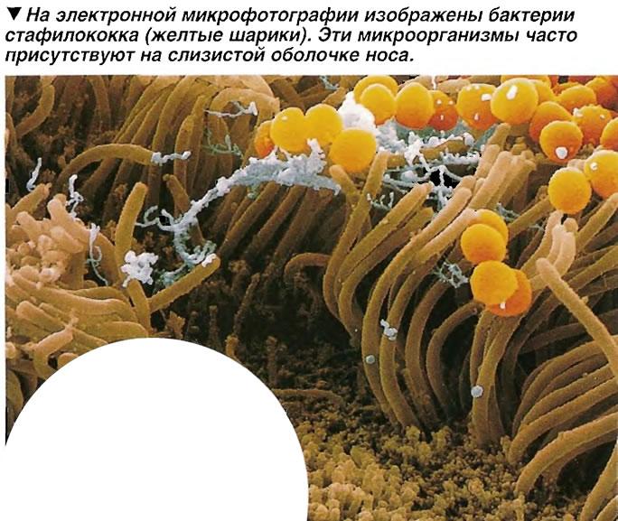 Бактерии стафилококка (желтые шарики)