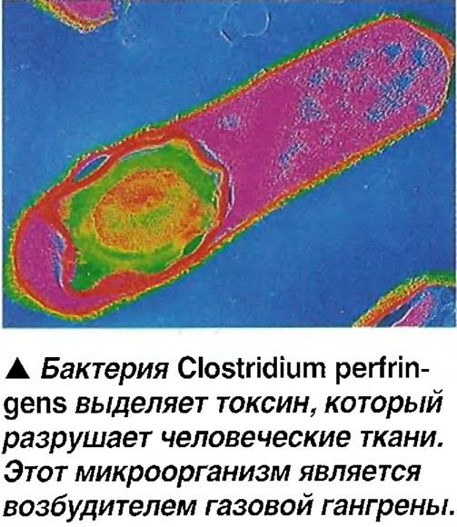Бактерия Clostridium perfringens выделяет токсин, который разрушает ткани