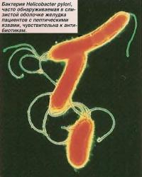 Бактерия Helicobacter pylori