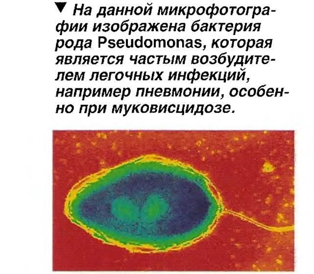 Бактерия рода Pseudomonas, которая является частым возбудителем легочных инфекций