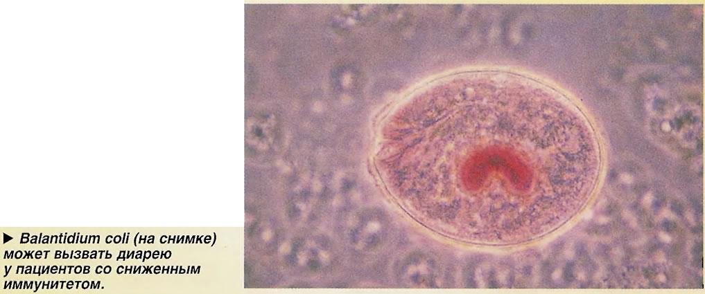 Balantidium coli (на снимке) может вызвать диарею у пациентов со сниженным иммунитетом