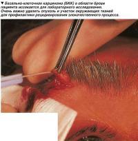 Базально-клеточная карцинома (БКК)