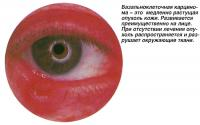 Базальноклеточная карцинома