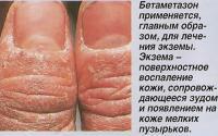 Бетаметазон применяется, главным образом, для лечения экземы