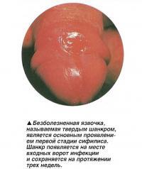 Безболезненная язвочка, называемая твердым шанкром