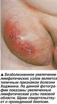 Безболезненное увеличение лимфатических узлов является признаком болезни Ходжкина