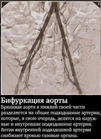 Бифуркация аорты