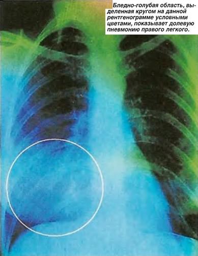 Бледно-голубая область показывает долевую пневмонию правого легкого