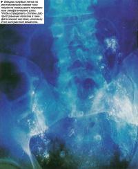 Бледно-голубые пятна на рентгеновском снимке таза