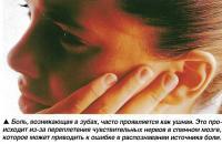 Боль, возникающая в зубах, часто проявляется как ушная