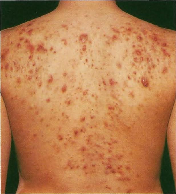 Более чем в половине случаев типичные пятна и пустулы располагаются на коже спины
