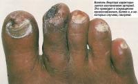 Болезнь Бюргера характеризуется воспалением артерий