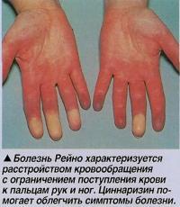 Болезнь Рейно характеризуется расстройством кровообращения к пальцам рук и ног