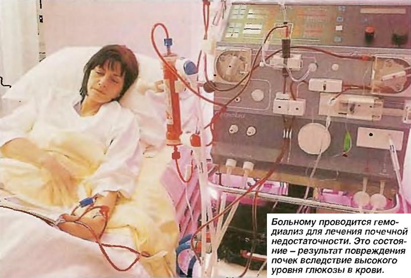 Больному проводится гемодиализ для лечения почечной недостаточности